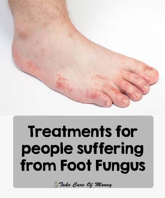 suffering-from-foot-fungus